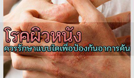 โรคผิวหนัง ควรรักษาแบบใดเพื่อป้องกันอาการคัน