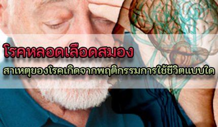 โรคหลอดเลือดสมอง สาเหตุของโรคเกิดจากพฤติกรรมการใช้ชีวิตแบบใด